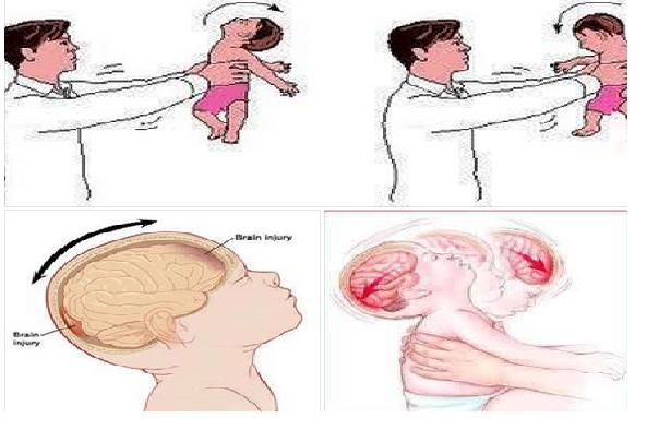 3sindrome-del-bebe-sacudido.png